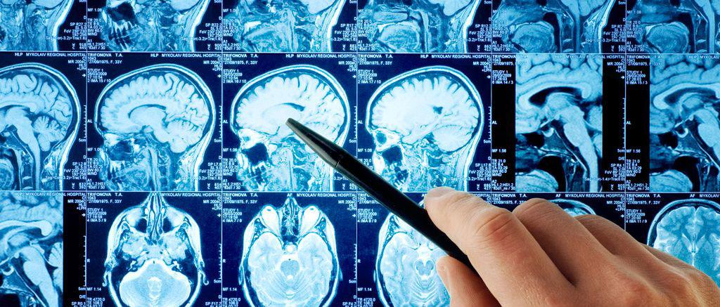 qu'est ce que la stimulation cognitive pour les personnes âgées et les seniors ?